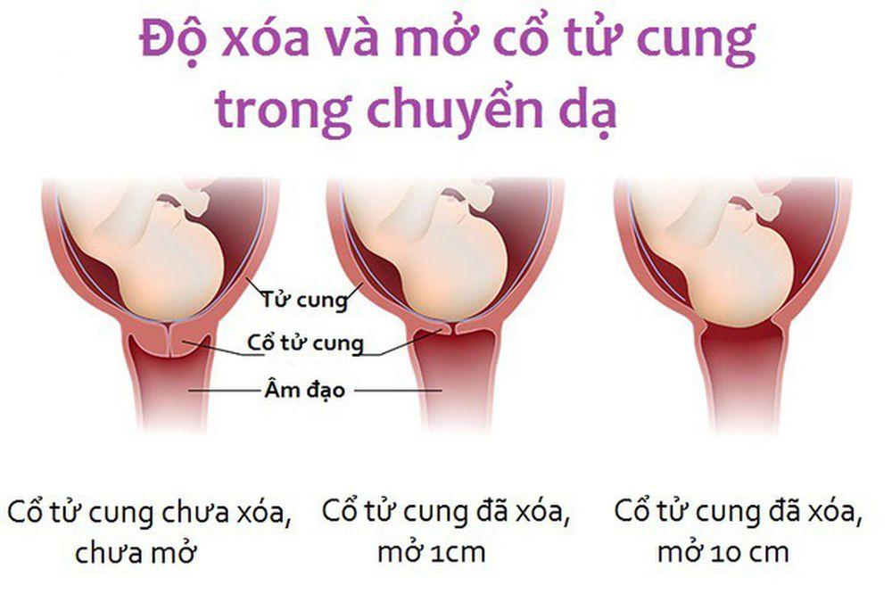 Hình Ảnh Mô Phỏng Độ Xóa Và Mở Cổ Tử Cung Trong Khi Người Mẹ Chuyển Dạ Sinh  Con.