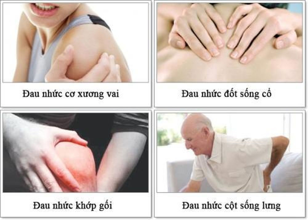 Tại sao lại bị đau nhức xương khớp khi trời trở lạnh? - Tạp chí Đời Sống &  Pháp Luật