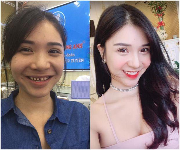 Hình ảnh trước và sau khi làm răng của Thanh Bi đang khiến cư dân mạng xôn xao vì khác nhau quá nhiều.