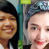 Top 10 'cực phẩm dao kéo' thành công nhất Việt Nam