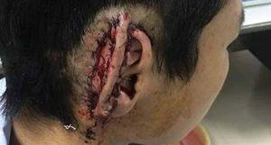 Học sinh lớp 10 bị bạn cắn đứt tai nuốt vào bụng