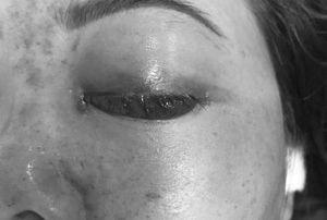 Chủ tiệm spa tiêm filler làm khách mù mắt bị phạt 120 triệu đồng