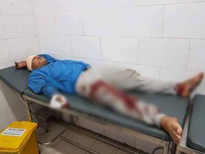TP.HCM: Truy đuổi nhóm trộm chó, một thanh niên bị đạp ngã trọng thương