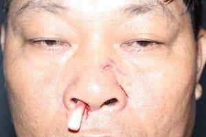 Đánh nhân viên điện lực gãy mũi vì thông báo cắt điện
