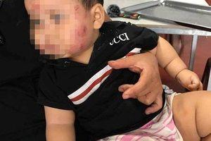 Mẹ trẻ tố con trai 11 tháng tuổi bị cắn khắp mặt sau khi đi nhà trẻ về