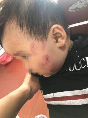 Bé 11 tháng tuổi bầm tím khắp người sau khi gửi trẻ tại Bắc Giang