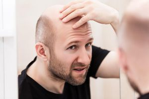 Rụng tóc, hói đầu: để lâu khó chữa