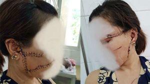 Bản tin pháp luật số 118: Gã trai điên cuồng rạch mặt, giết hại tình nhân