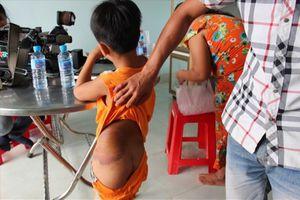 Vụ giáo viên đánh học sinh bầm mông: Do mẹ học sinh... nhờ đánh