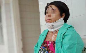Thương tâm người phụ nữ trẻ bị bỏng nặng do chồng dùng xăng đốt