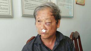Đã có kết quả giám định thương tích PV VTV ở Kon Tum bị đánh
