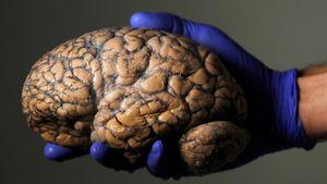 Lần đầu tiên bác sĩ phẫu thuật não cho bệnh nhân cách xa 3.000km bằng công nghệ 5G