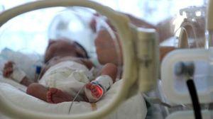 Kỳ diệu em bé chào đời sau 3 tháng người mẹ chết não