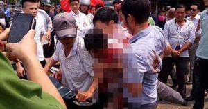 Vụ 7 người đi vệ sinh trả 5.000 đồng, đánh trọng thương chủ nhà: Bàng hoàng lời kể của nạn nhân