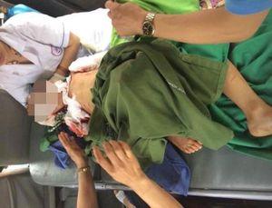 Bé 7 tuổi ở Thái Nguyên bị chó cắn phải khâu 200 mũi đã tử vong