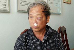 Bộ Tài nguyên & Môi trường lên tiếng vụ phóng viên VTV bị đánh dã man