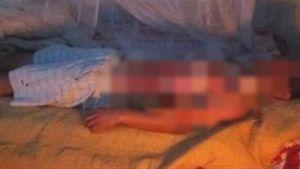 Dội nước sôi lên người chồng đang ngủ vì nghi ngoại tình