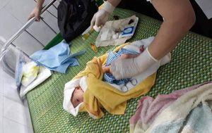 Quảng Ngãi: Một bé trai bị bỏ túi ni lông treo trên xe ven đường