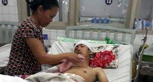 Xót thương cảnh mẹ nghèo chăm con tai nạn giao thông