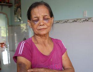 Phạt 2 triệu đồng con dâu đánh mẹ chồng tím mặt ở Bình Phước