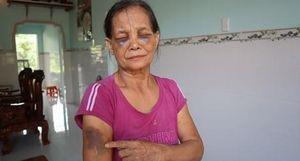 Xử phạt con dâu đánh mẹ chồng gây thương tích