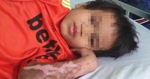 Vụ bác sĩ năn nỉ được cứu chữa cháu bé phỏng nặng: A Huyên đã bình phục, xuất viện