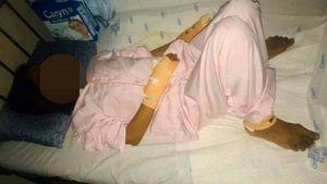 Phát hiện chồng đổ xăng tự thiêu, vợ xông vào cứu cũng bị bỏng nặng