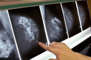 AI giúp sàng lọc ung thư vú tốt hơn các phương pháp hiện hành?
