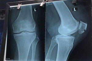 Bộ Y tế vào cuộc vụ bệnh nhân tử vong khi chữa gãy xương ở bệnh viện STO Phương Đông