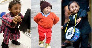 Người đàn ông lùn nhất thế giới qua đời ở tuổi 27