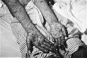 Kinh nghiệm Liên Xô dập ổ dịch đậu mùa trong 19 ngày