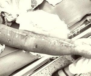 Mủ lan rộng toàn bộ cánh tay bệnh nhi 4 tuổi do đắp thuốc lá khi bị chấn thương
