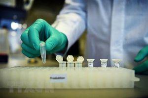 Mỹ chuẩn bị thử nghiệm loại vắcxin chống COVID-19 thứ hai