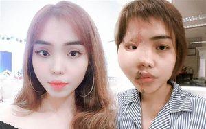 Cô gái bị chồng sắp cưới tạt axit biến dạng khuôn mặt: Sau 1 năm đã trở lại với nụ cười xinh đẹp rạng rỡ