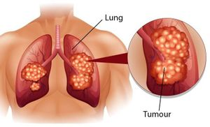 5 loại ung thư nguy hiểm có tính di truyền, nhà có người mắc thì con cái cần đi khám sàng lọc sớm