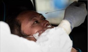 Thử nghiệm sử dụng tế bào gốc chữa cho bệnh nhân Covid-19 thể nặng