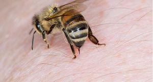 Nghịch phá tổ ong vò vẽ, bé trai 4 tuổi bị đốt hơn 80 mũi