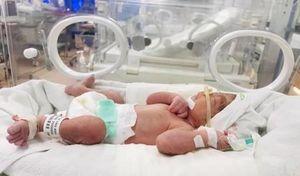 Hy hữu: Sản phụ sinh con khỏe mạnh dù vị vỡ tử cung ở tuần thứ 25 thai kỳ