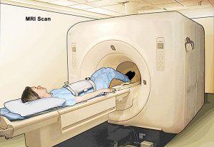 Trí tuệ nhân tạo giúp chụp MRI nhanh gấp 4 lần