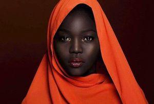 Từng sống khổ cực vì sự kỳ thị và ánh mắt giễu cợt của người đời, cô gái 'đen như than' có màn 'lột xác' khiến cả thế giới kinh ngạc
