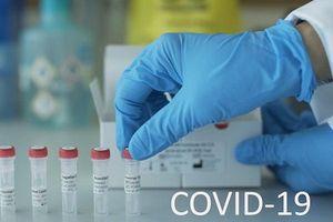 Một số thông tin về COVID-19