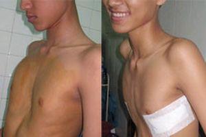 Thêm một bệnh viện nâng ngực lõm bằng thanh kim loại