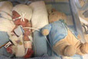 Cậu bé sinh non nặng 480 g sống sót kỳ diệu