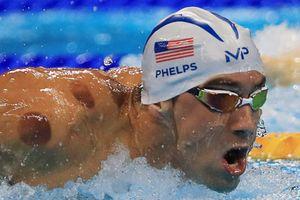 Giới kình ngư dự Olympic rầm rộ khoe ảnh giác hơi