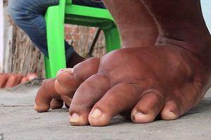 Việt Nam có tồn tại bệnh 'chân voi' sau khi bị muỗi đốt?