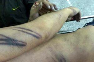 Bắt giam 2 cảnh sát dùng nhục hình khiến bị can tử vong