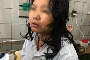 Nữ bệnh nhân suy gan, hôn mê nghi do thực phẩm chức năng đã tử vong