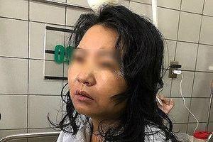 Nữ y tá bị hôn mê nghi do thực phẩm chức năng giảm cân đã qua đời