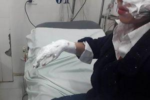 3 sinh viên bị bỏng nặng vì bóng bay galaxy phát nổ