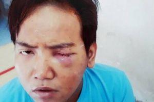 Bảo vệ dân phố bị tâm thần phân liệt sát hại bé trai 6 tuổi ở TP.HCM